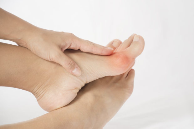 non-surgical ways to alleviate bunion pain